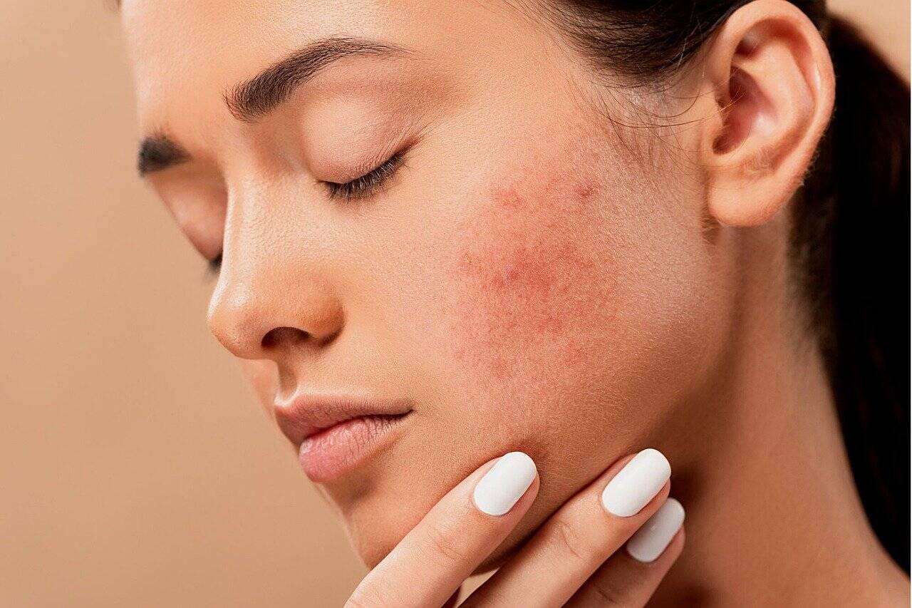 Médicos apontaram que cerca de 30% dos pacientes com a Covid-19 possuem lesões na pele (Foto: Pixabay)
