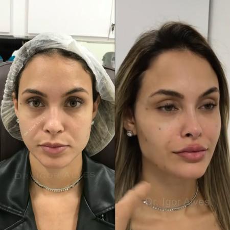 A ex-sister já havia feito harmonização facial e colocado lente nos dentes (Foto: Instagram)