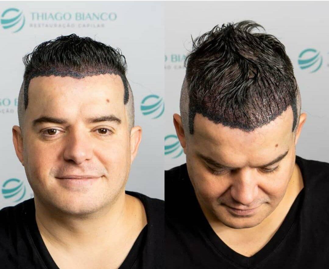 Belutti também renovou o visual durante esse período. O cantor já havia feito um transplante há anos, mas resolveu repetir o procedimento. (Foto: Instagram)