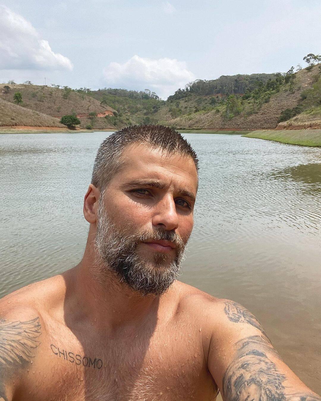 Em 2013, Bruno Gagliasso que vinha sofrendo com a calvície resolveu se render ao transplante capilar. Entretanto, devido à falta de cuidado os fios foram caindo. (Foto: Instagram)