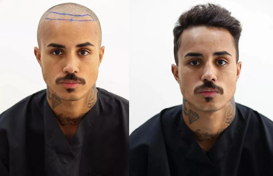 MC Livinho também está incluído na longa lista de famosos que fizeram o procedimento de transplantes capilar. Segundo o cantor, o que mais incomodava era algumas entradas que tinha por conta da calvície. (Foto: Divulgação)